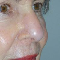 After nasal reconstruction by Sam Naficy, MD following removal of a basal cell carcinoma