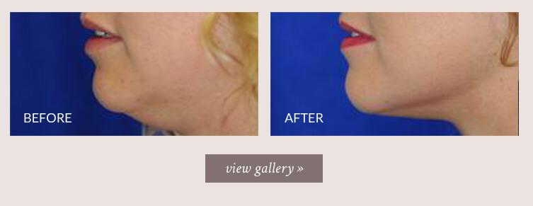 Neck Liposuction Seattle | Neck Liposuction Bellevue