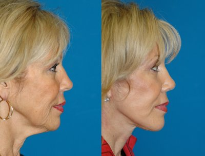 Lower Face and Neck lift by Sam Naficy, MD