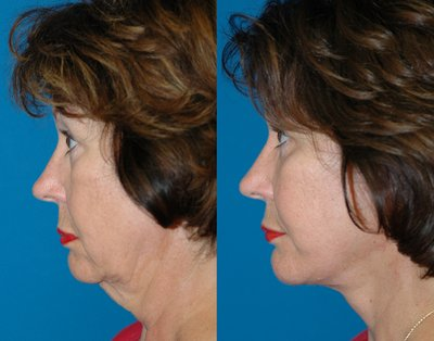 Neck lift by Sam Naficy, MD
