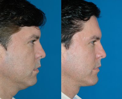 Mini Neck lift and Chin implant by Sam Naficy, MD