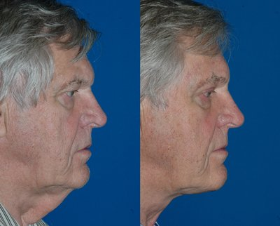 Direct neck lift by Sam Naficy, MD