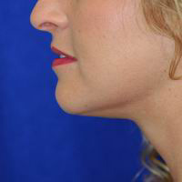 After chin and neck liposuction