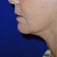 After neck liposuction, face and neck lift