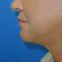 After neck liposuction, chin augmentation, upper lip lift, upper lip augmentation