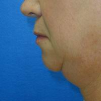 Before neck liposuction, chin augmentation, upper lip lift, upper lip augmentation