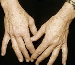 After treatment of brown age spots on hands