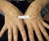 Before treatment of brown age spots on hands