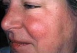 Before treatment of Rosacea on face