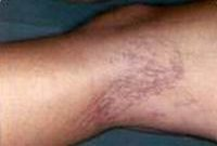 Before treatment of spider veins on the legs
