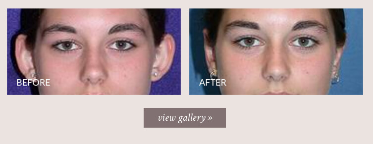 otoplasty-gallery.jpg