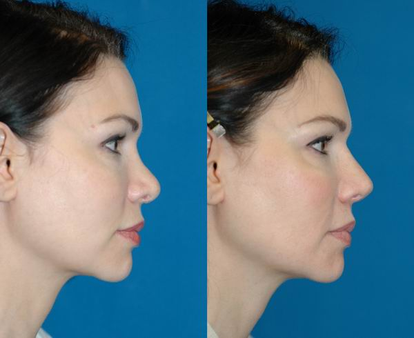 revision_rhinoplasty_seattle03.jpg