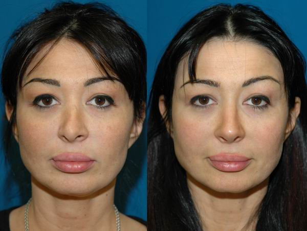 revision_rhinoplasty_seattle05.jpg