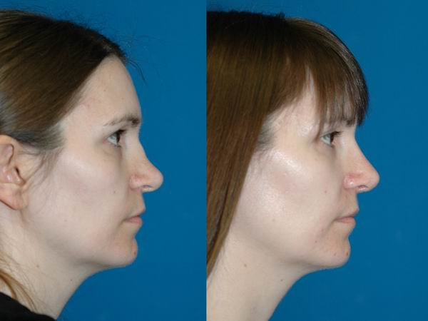 revision_rhinoplasty_seattle06.jpg
