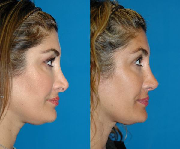 revision_rhinoplasty_seattle07.jpg