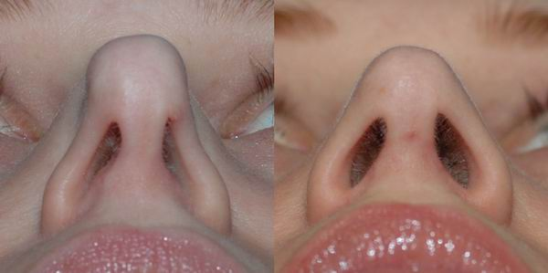 revision_rhinoplasty_seattle09.jpg