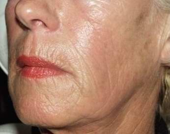 After Sculptra