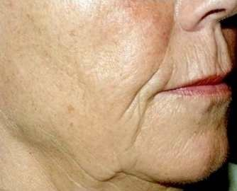 Before Sculptra