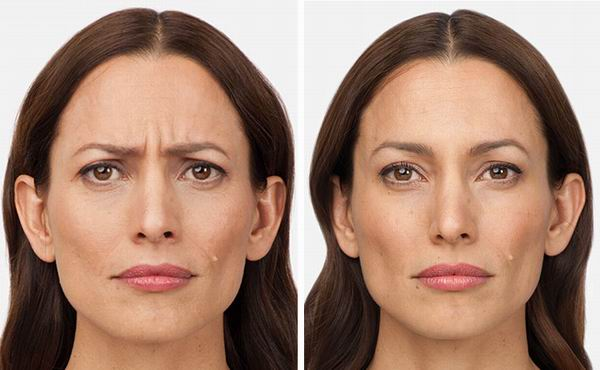 botox face before and after
