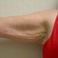 Before Thermage treatment to arm