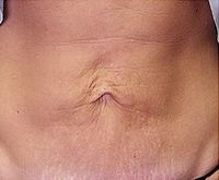 Before Body Thermage treatment to abdomen