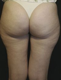 After Thermage treatment for cellulite
