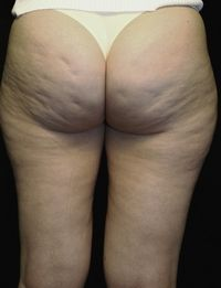 Before Thermage treatment for cellulite