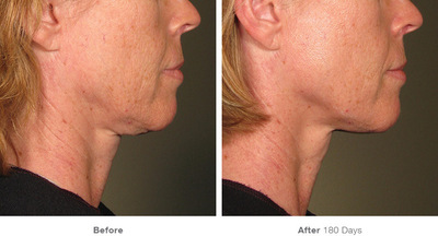 Ultherapy Seattle | Ultherapy Bellevue | Ultherapy Skin Tightening