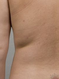After CoolSculpting procedure