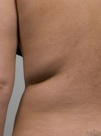 Before CoolSculpting procedure